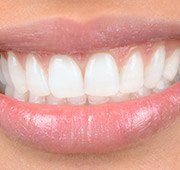 Closeup of healthy teeht and gums