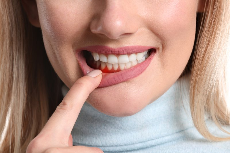 a woman pulling down her bottom lip to expose her red gums